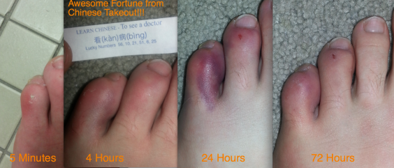 ToeProgress