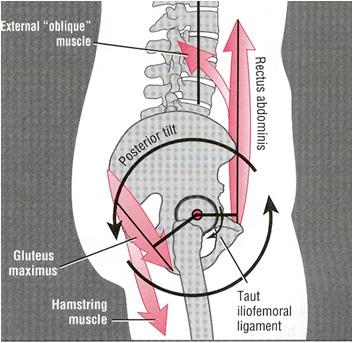 posterior-pelvic-tilt1