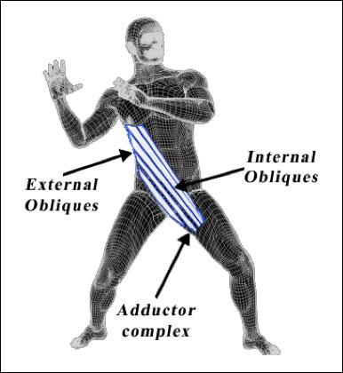 versus_anterior_sling